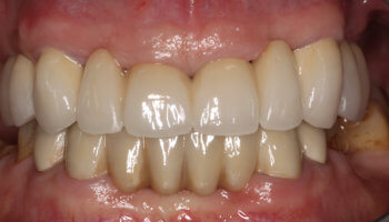 Whitestone Dental - New York - Dr Robert Olan DDS, PC - Periodontics and Dental Implants - Before and After 1