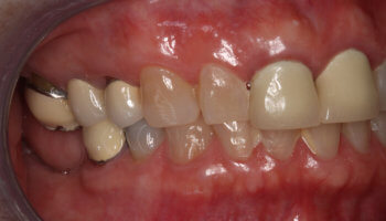 Whitestone Dental - New York - Dr Robert Olan DDS, PC - Periodontics and Dental Implants - Before and After 2