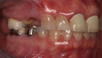 Whitestone Dental - New York - Dr Robert Olan DDS, PC - Periodontics and Dental Implants - Before and After 3