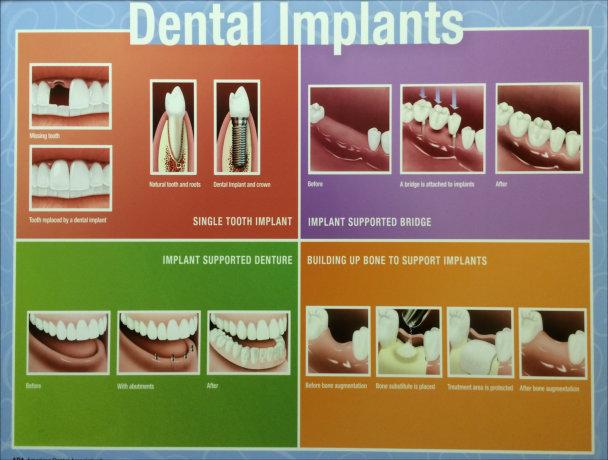 Whitestone Dental - New York - Dr Robert Olan DDS, PC - Periodontics and Dental Implants - Dental Implants